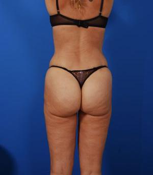 Brazilian Butt Lift Photos: Case 12 - after
