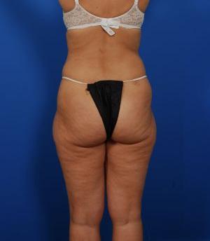Brazilian Butt Lift Photos: Case 12 - before