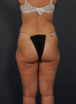 Brazilian Butt Lift Photos: Case 12