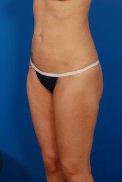 Brazilian Butt Lift Photos: Case 10 - After 5 Months