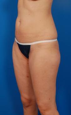 Brazilian Butt Lift Photos: Case 10 - before