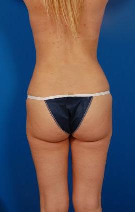 Brazilian Butt Lift Photos: Case 10