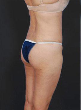 Brazilian Butt Lift Photos: Case 2