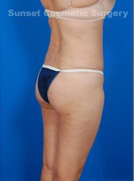 Brazilian Butt Lift Photos: Case 2 - after