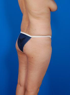 Brazilian Butt Lift Photos: Case 2 - before