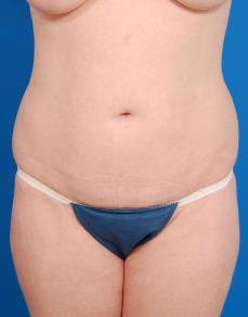 Brazilian Butt Lift Photos: Case 3 - before
