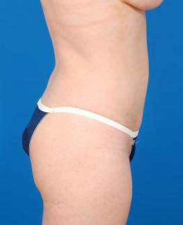 Brazilian Butt Lift Photos: Case 3 - after