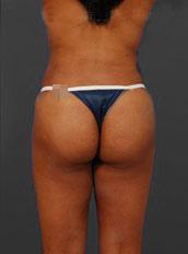 Brazilian Butt Lift Photos: Case 4