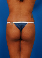 Brazilian Butt Lift Photos: Case 4 - before