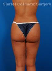 Brazilian Butt Lift Photos: Case 5 - after
