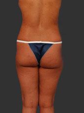 Brazilian Butt Lift Photos: Case 5