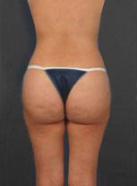 Brazilian Butt Lift Photos: Case 6
