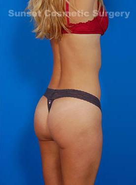 Brazilian Butt Lift Photos: Case 9 - After 1 Month