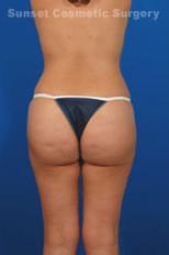 Brazilian Butt Lift Photos: Case 6 - after