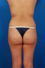 Brazilian Butt Lift Photos: Case 6 - before
