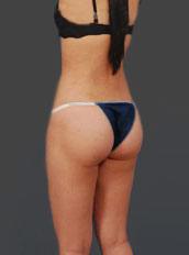 Brazilian Butt Lift Photos: Case 7