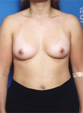 Breast Augmentation with natural result Case: 11