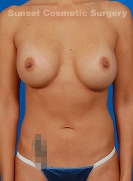 Natural Silicone Breast Augmentation Case 17