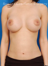 Breast Augmentation Photos (Implants): Case 31 - after