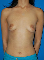 Breast Augmentation Photos (Implants): Case 31 - before