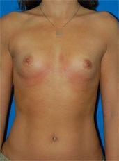 Breast Augmentation Photos (Implants): Case 35