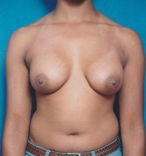 Breast Augmentation Photos (Implants): Case 370