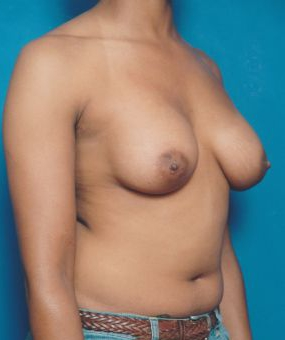 Breast Augmentation Photos (Implants): Case 370 - After 6 Months
