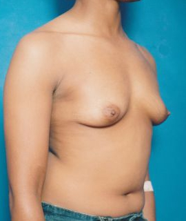 Breast Augmentation Photos (Implants): Case 370 - before
