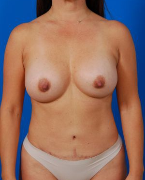 Breast Augmentation Photos (Implants): Case 6222 - After 4 Months
