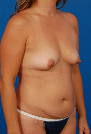 Breast Augmentation Photos (Implants): Case 6222 - before