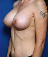 Breast Augmentation, Saline Implants: Case 22 - After 3 Weeks