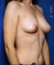 Breast Augmentation, Saline Implants: Case 22 - before