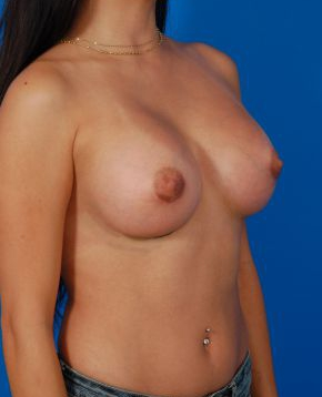 Breast Augmentation, Silicone Implants: Case 12862 - After 2 Months