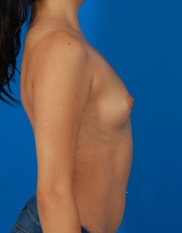 Breast Augmentation, Silicone Implants: Case 12862 - before