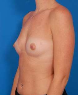 Breast Augmentation, Silicone Implants: Case 6368 - before