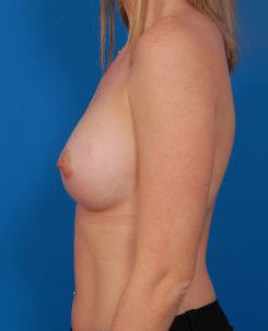 Breast Augmentation, Silicone Implants: Case 6368 - After 2 Months
