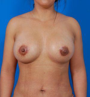 Silicone Breast Breast Augmentation Case 2