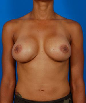 Breast Implant Exchange : Case 1 - after