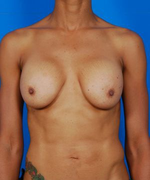 Breast Implant Exchange : Case 1 - before