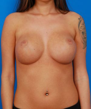 Breast Implant Exchange : Case 3 - after