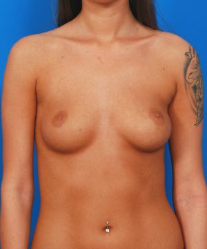 Breast Implant Exchange : Case 3 - before