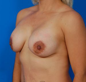 Breast Lift Photos: Case 28 - After 3 Months