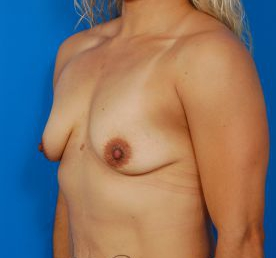 Breast Lift Photos: Case 28 - before