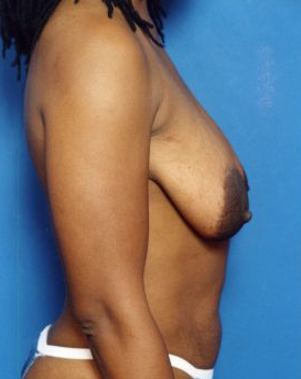Breast Lift Photos: Case 1223 - before