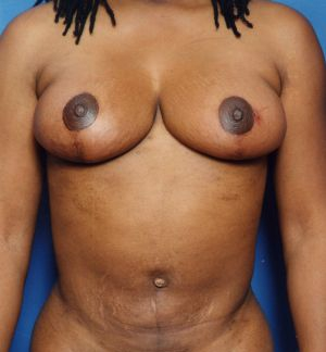 Breast Lift Photos: Case 1223 - After 3 Months