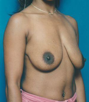 Breast Lift Photos: Case 1461 - before