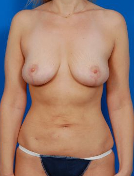 Breast Lift Photos: Case 2 - after