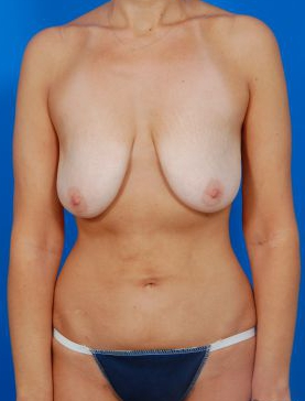 Breast Lift Photos: Case 2 - before