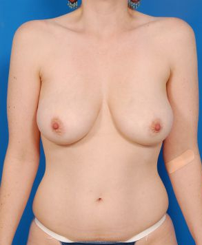 Breast Lift Photos: Case 24 - before