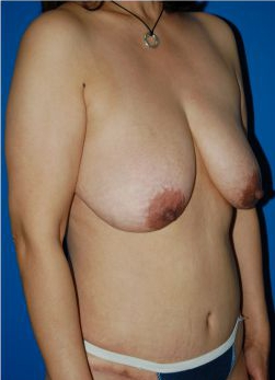 Breast Lift Photos: Case 25 - before